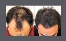 before-after-neograft