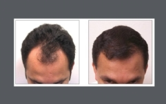 neograft-before-after