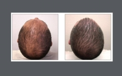 neograft-before-after-top