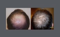 before-after-neograft-top