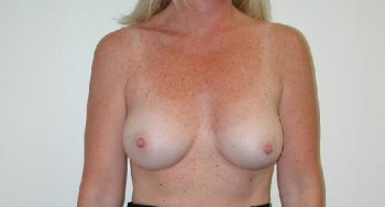 Cosmetic Surgery west palm beach