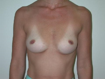 breast-implant-case-1-before-front