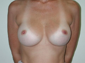 breast-implant-case-1-after-front