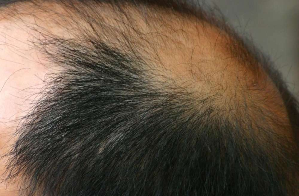 4 Things to Know About Getting Services for Hair Restoration in West Palm Beach