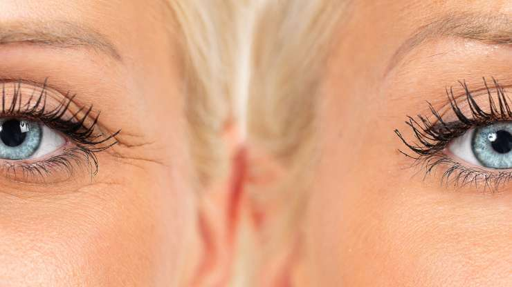After Dermal Fillers in West Palm Beach: What to Expect