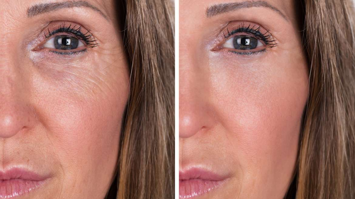 Top Surgical and Non-Surgical Options for Facial Rejuvenation in Fort Lauderdale