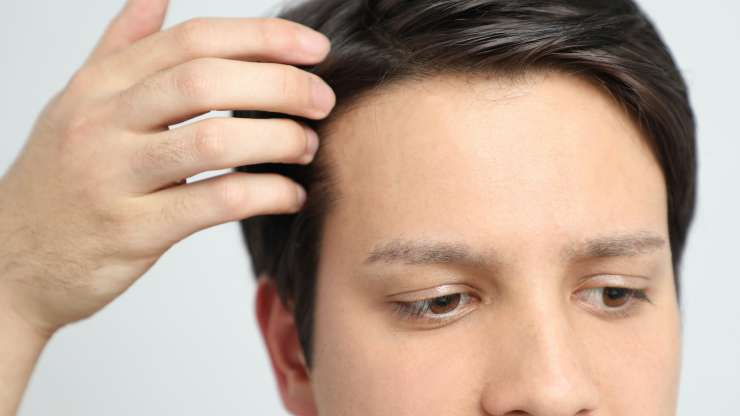 5 FAQs About Hair Restoration in Palm Beach